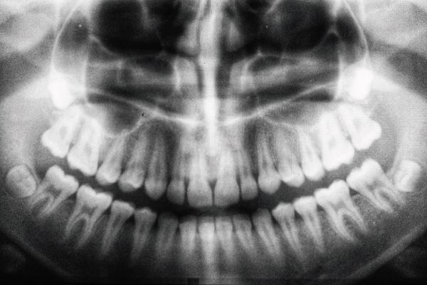 Hiperplasia - Zen Dental 2