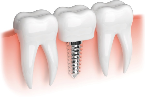 Implantes dentales - osteointegración - Zen Dental 1