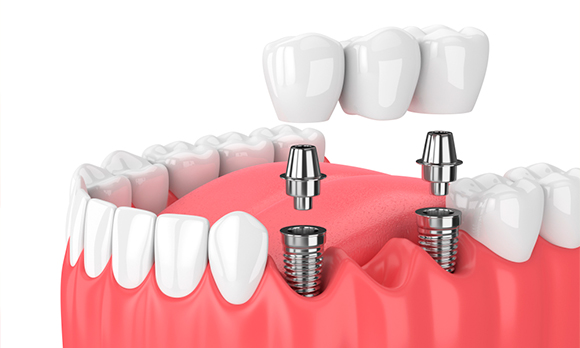 Implantes-dentales-tener-en-presente-en-cuanto-a-precios
