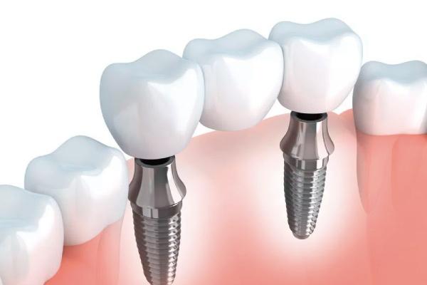 La importancia de los implantes dentales - Zen Dental - 1