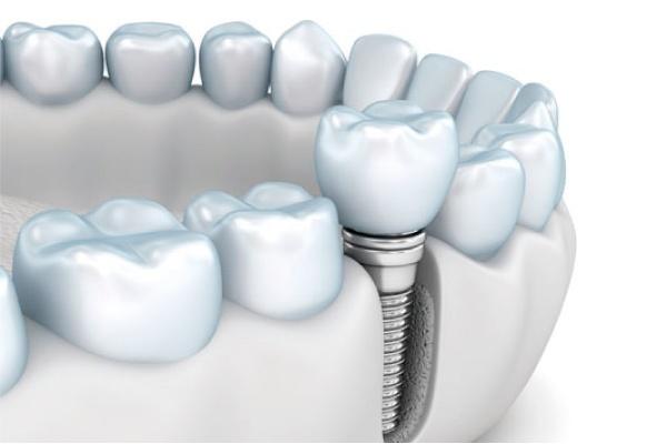 La importancia de los implantes dentales - Zen Dental - 3