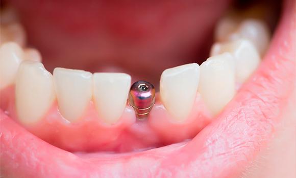 Los-implantes-dentales-Straumann