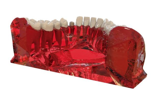 Periimplantitis - Zen Dental - 1