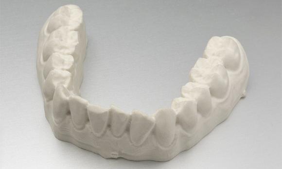 Por-que-son-necesarias-las-impresiones-dentales-zendental