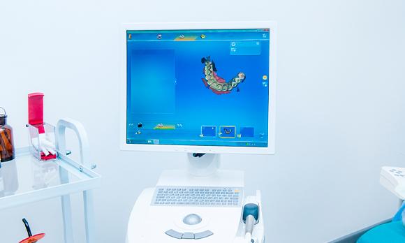 Pros-del-CAD-CAM-para-colocar-coronas-sobre-implantes