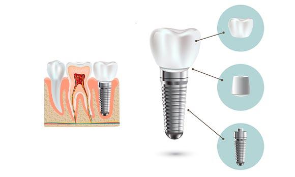 Que-son-los-implantes-dentales