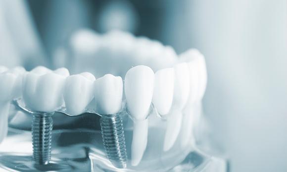 Viabilidad-de-los-implantes-dentales-mediante-el-proceso-de-sedación-consciente