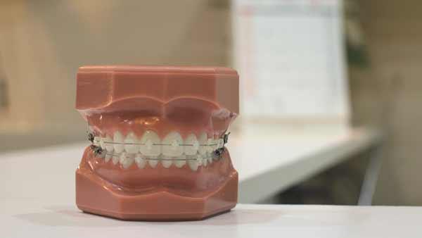 Zen-Dental---Tipos-de-Ortodoncia