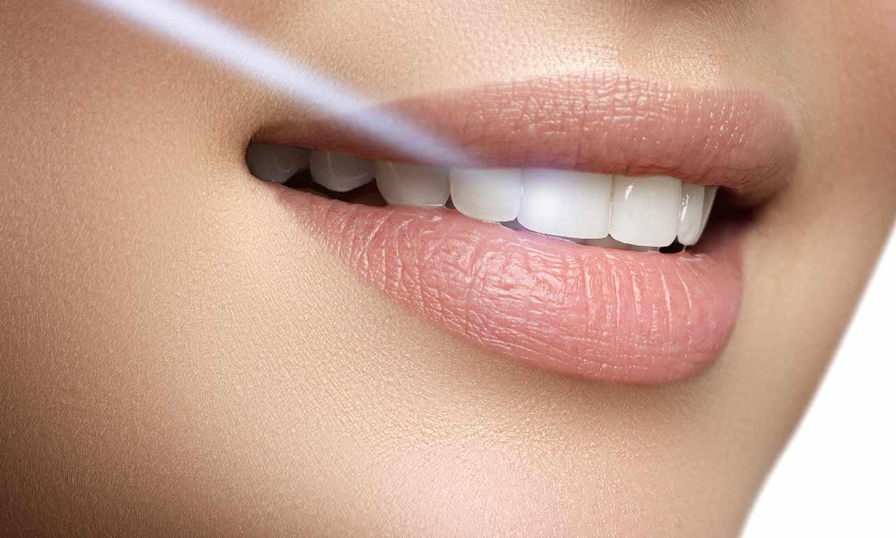 laser en endodoncia