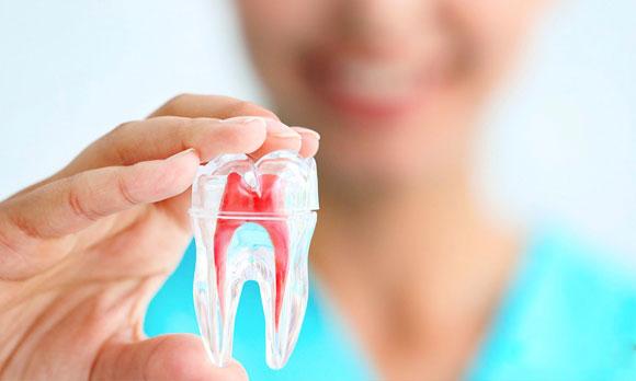 endodoncia-las-rozas