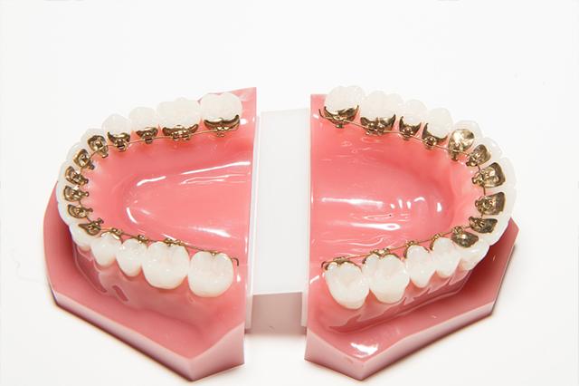 ortodoncia-lingual-sobre-la-ortodoncia-tradicional